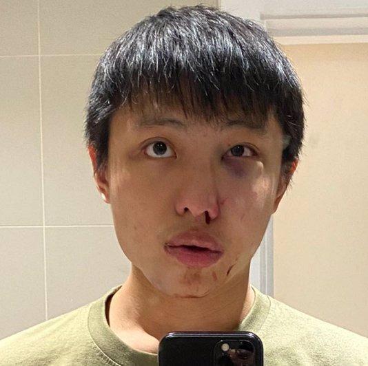 Nechceme tvůj koronavirus ve své zemi! Asijský student se v Londýně stal obětí rasistického útoku