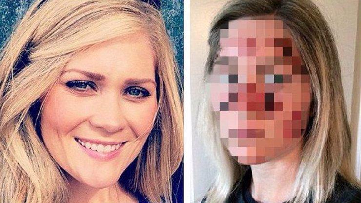 Dostala rakovinu kůže a šokující fotografií varuje svět! Nechoďte do solárka, nebo dopadnete takhle!
