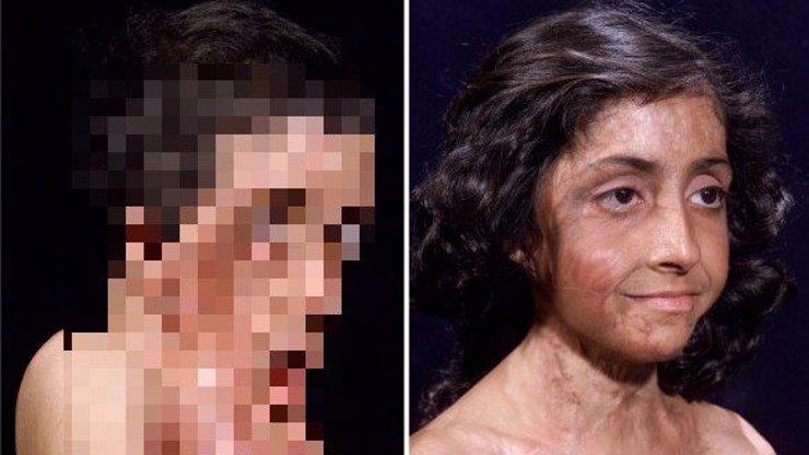 7 ukázek toho, co dokáže plastická chirurgie! Ze znetvořeného člověka opět krasavcem!