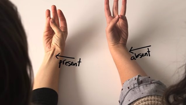 ZAJÍMAVÝ TEST: Spojte malíček a palec na jedné ruce. Hodně to vypoví o vašem těle!