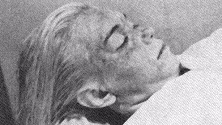 4 posmrtné snímky slavných: Děsivé fotografie těl po pitvě, které obletěly svět