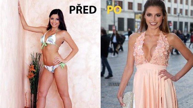 Na tyhle SILIKONY SBALILA bohatého hokejku Ondru Pavelce. Ale její hrudníček byl ještě donedávna jak plochá dráha