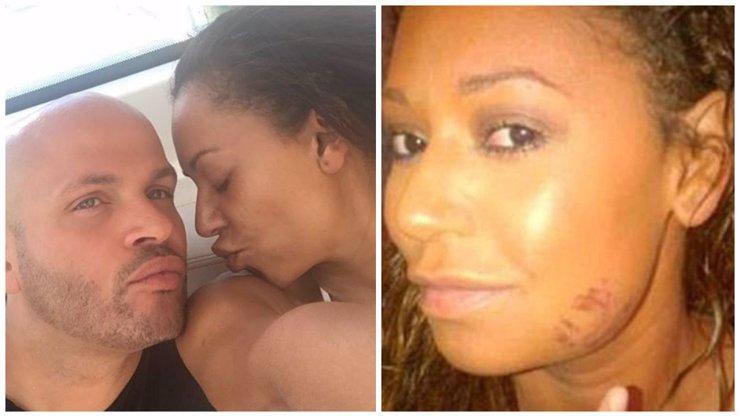 Takhle dopadla Mel B ze Spice Girls! Manžel ji nutil do trojky a škrtil před vlastními dětmi!