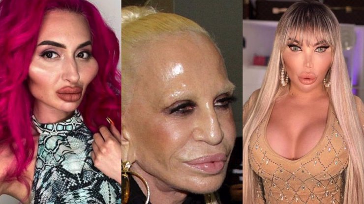 Deset celebrit, které si plastikami zohavily tvář: Donatella Versace a Rodrigo Alves už jsou k nepoznání