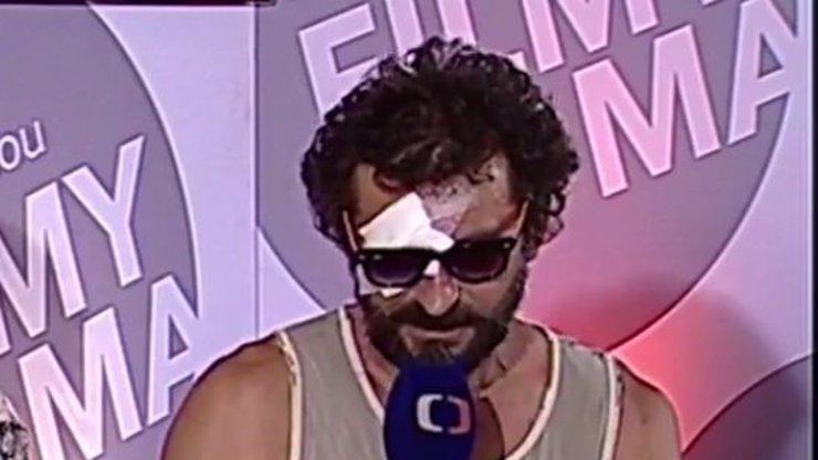 Zdravotní problém Ondřeje Vetchého: Vidí pouze na jedno oko!