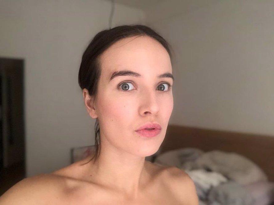 Tereza Voříšková přišla o poznávací znamení: Piha nad obočím musela pryč!