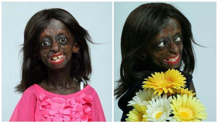 V JAR zemřela první černošská dívka se syndromem stárnutí. Dožila se déle, než lékaři předpokládali