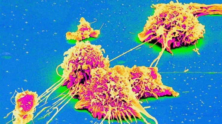 6 jednoduchých cest, jak snížit riziko vzniku rakoviny