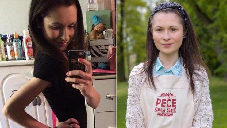 Vyčítám si každé sousto: Děsivé detaily o anorexii Aničky (23) z Peče celá země