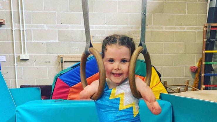 Přišla o nohy i ruce, ale to ji nezastavilo: Velká bojovnice (5) se věnuje gymnastice