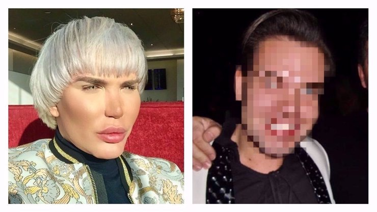 Plastický Ken Rodrigo Alves nepřestává šokovat! Odhalil fotografie staré 6 let a je to zcela jiný člověk