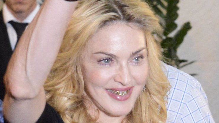 Ne, to nejsou zbytky od oběda, Madonna si nechala obalit zuby zlatem, protože na to má!