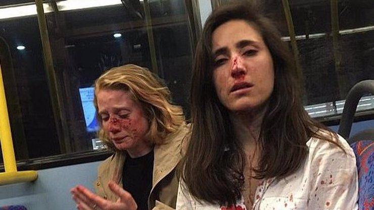 Brutální napadení dvou lesbiček: Nechtěly se líbat, skončily v kaluži krve