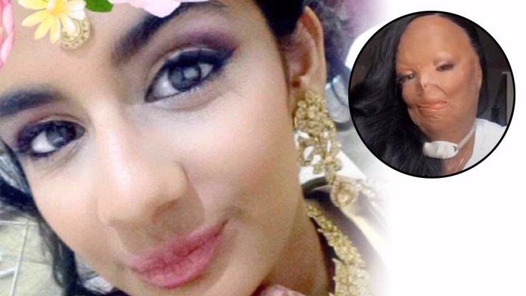 Dívka si aplikovala šampon proti vším: Prošla se po kuchyni a shořel jí obličej