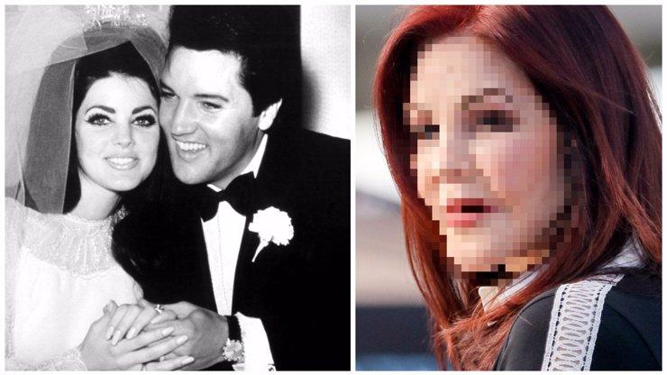 Z bývalé manželky Elvise je nafouknutá ropucha! Tohle je hodně smutný konec paní Presleyové!
