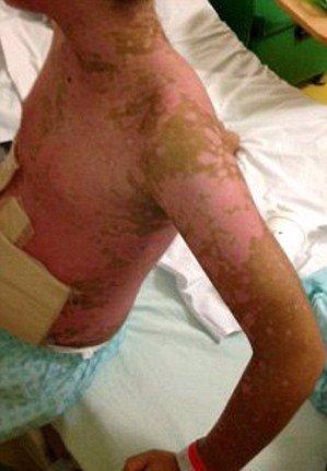 Léky mu málem vzaly život: Chlapec si vzal ibuprofen, teď má celé tělo pokryté puchýři a hrozí mu oslepnutí!