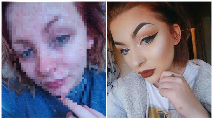 KRUTÝ ŽIVOT S LUPÉNKOU: Dívka odhalila svoji pravou tvář! Ukázala, jak vypadá, když na sobě nemá make-up!