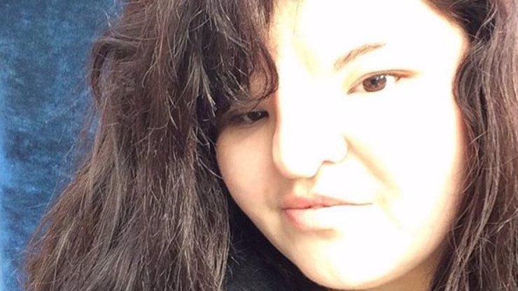 Narodila se s dírou v lebce a bez nosu, dnes si hrdě pořizuje jednu selfie za druhou