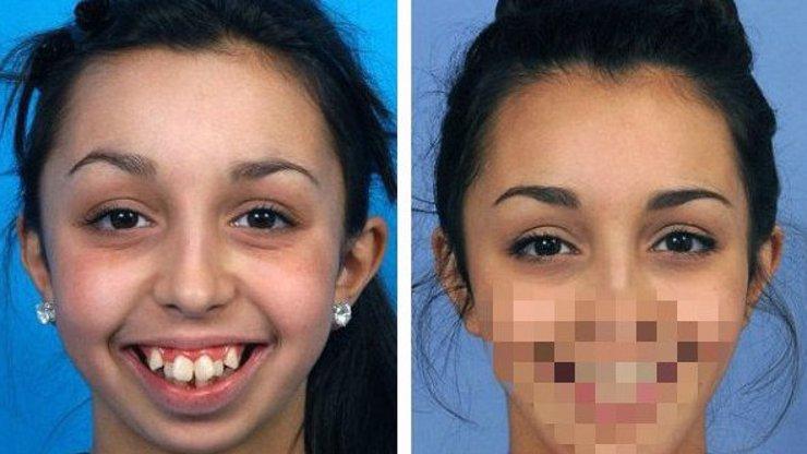 Spolužáci ji roky šikanovali kvůli křivým zubům: Ona jim svou proměnou totálně vytřela zrak!