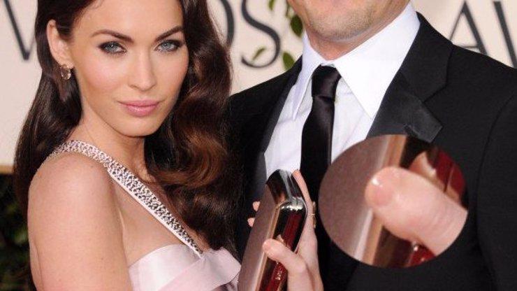 Ani slavní nejsou dokonalí: 7 celebrit, které mají podivnou tělesnou vadu