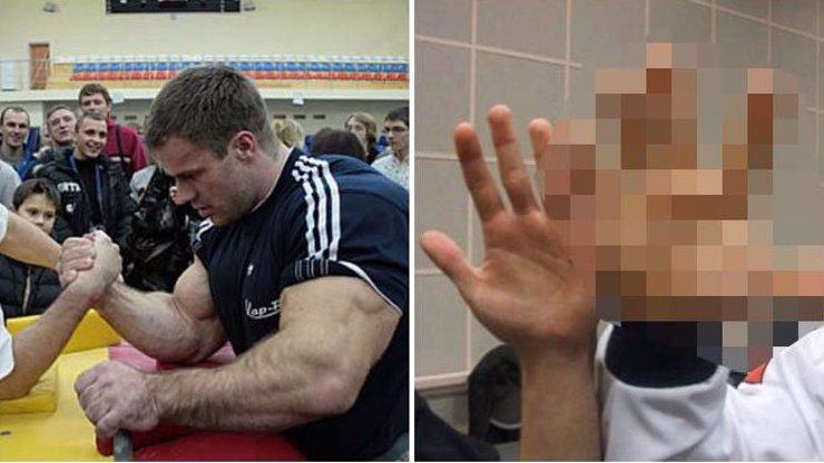 Chcete vidět, jak vypadají ruce profesionálního ukrajinského hráče páky? Jsou monstrózní a děsivé!