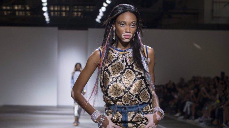 Zvláštní modelka s kožní nemocí je hvězdou velké kampaně, nastal konec dokonalosti