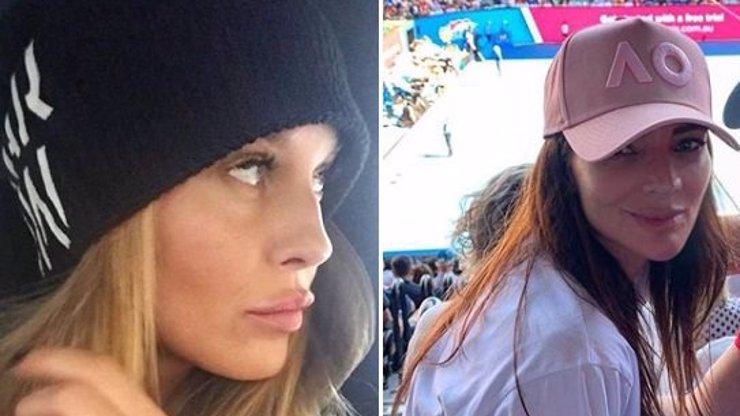 Simona Krainová i Monika Marešová si nechaly upravit rty: Která z nich má větší?