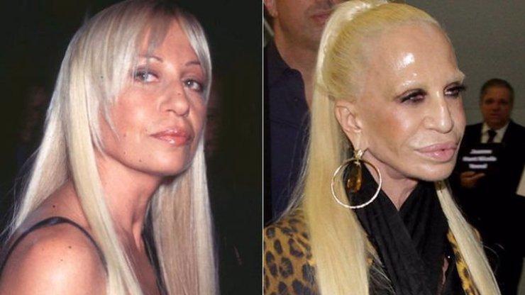Královna módy a botoxu: Donatella Versace slaví 64, plastiky z ní udělaly příšeru