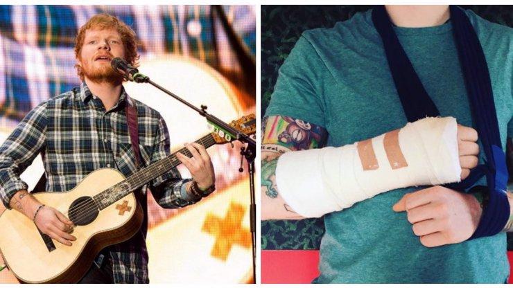 Oblíbený zrzek Ed Sheeran skončil v nemocnici: Nehezky ho srazilo auto. Jak je na tom?