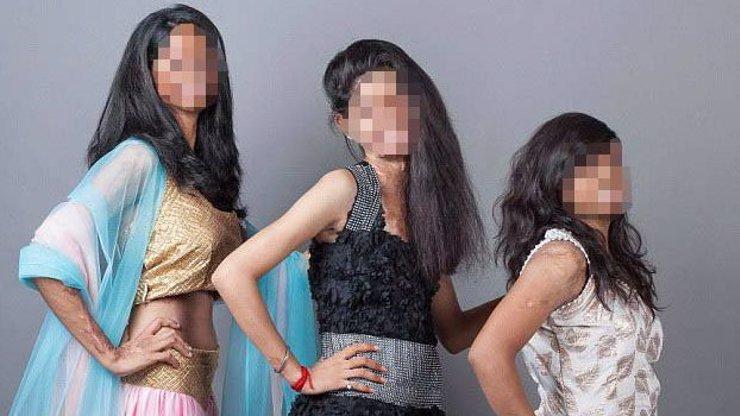 Hrozivé obrázky plné naděje: Indické ženy, které přežily útoky kyselinou, nafotily kalendář!