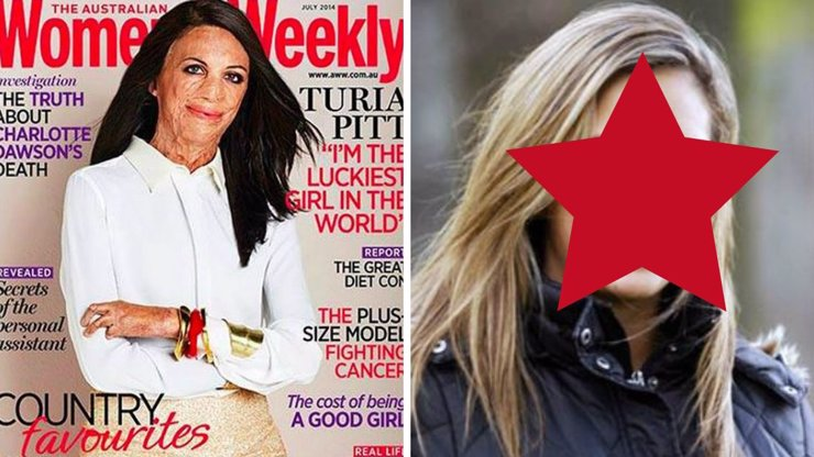 Jak vypadala popálená dívka z titulky Women's Weekly, než ji sežehly plameny, a co se vlastně tehdy stalo?