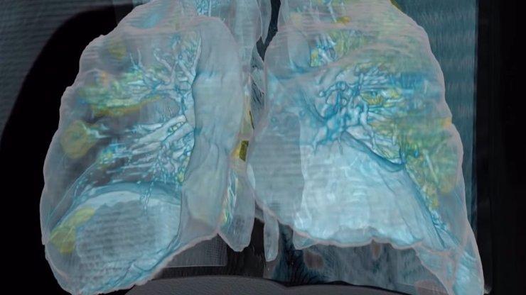 Odstrašující video odhaluje poškození plic koronavirem: Tuhle nákazu lidé nesmí podceňovat