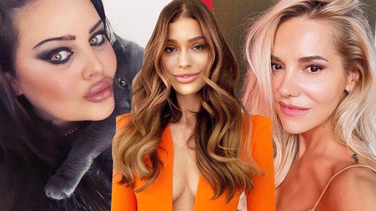 Plast zvítězil nad přirozeností: Celebrity letos svedly boj o největší prsa a kapří pusu