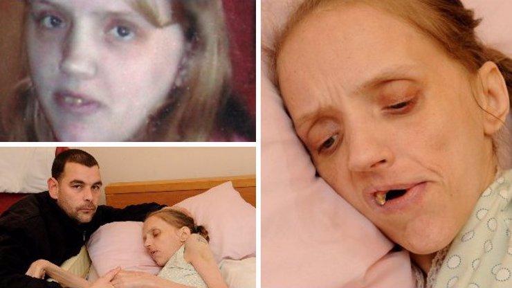 Matka čtyř dětí v 35 letech umírá: Do tak strašlivého stavu ji dohnal alkohol, neuvěříte, co zvládala vypít!