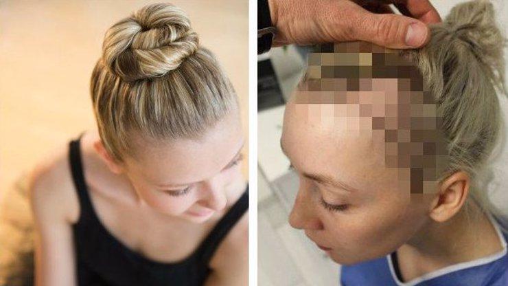 Baletka varuje: Tohle se stane s vašimi vlasy, když budete nosit příliš těsný drdol!