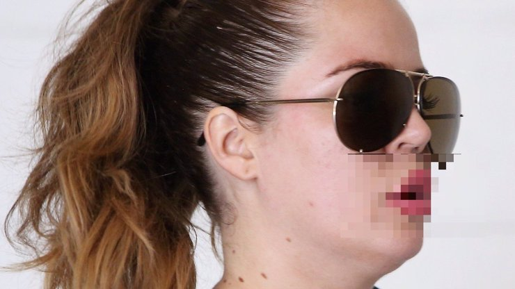 Sestře Kim Kardashian natekl po botoxu pysk, jako kdyby strčila hlavu do vosího hnízda!