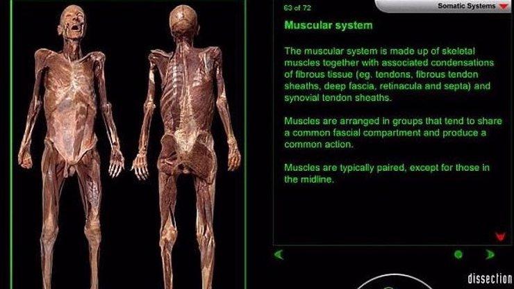 Nic pro slabé nátury! Teď už můžete pitvat lidské tělo přes internet. Má to ale podmínku!