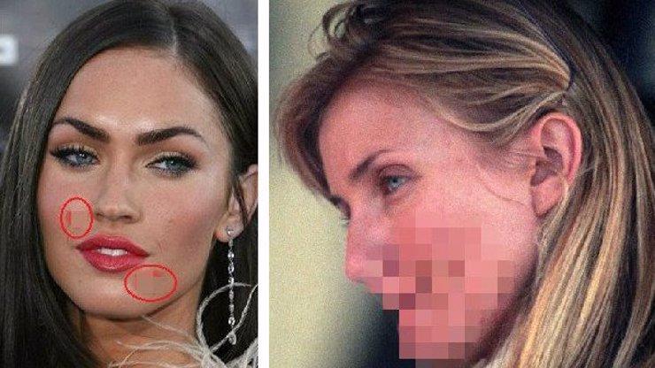 Které celebrity nejvíce trpí na akné? Pohled zblízka vás pořádně vyděsí!