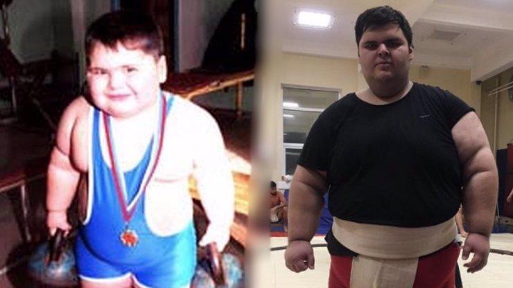 Zemřelo bývalé nejtlustší dítě světa: Džambulat Khatokhov se dožil jen 21 let