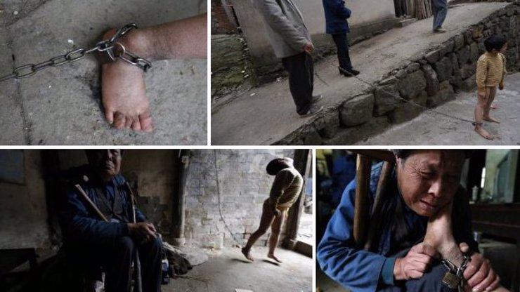 Jediná šance pro postiženého jedenáctiletého chlapce: Jeho rodina ho drží na řetězu, aby neublížil ostatním