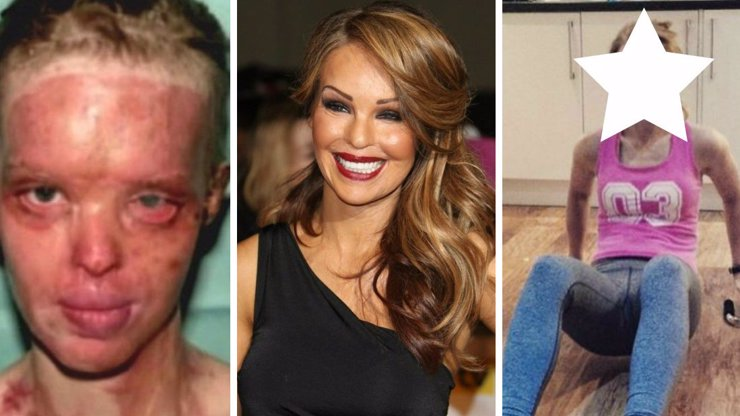Modelka, kterou expřítel nechal znetvořit kyselinou, už má spravený obličej. Teď se ukázala nenalíčená