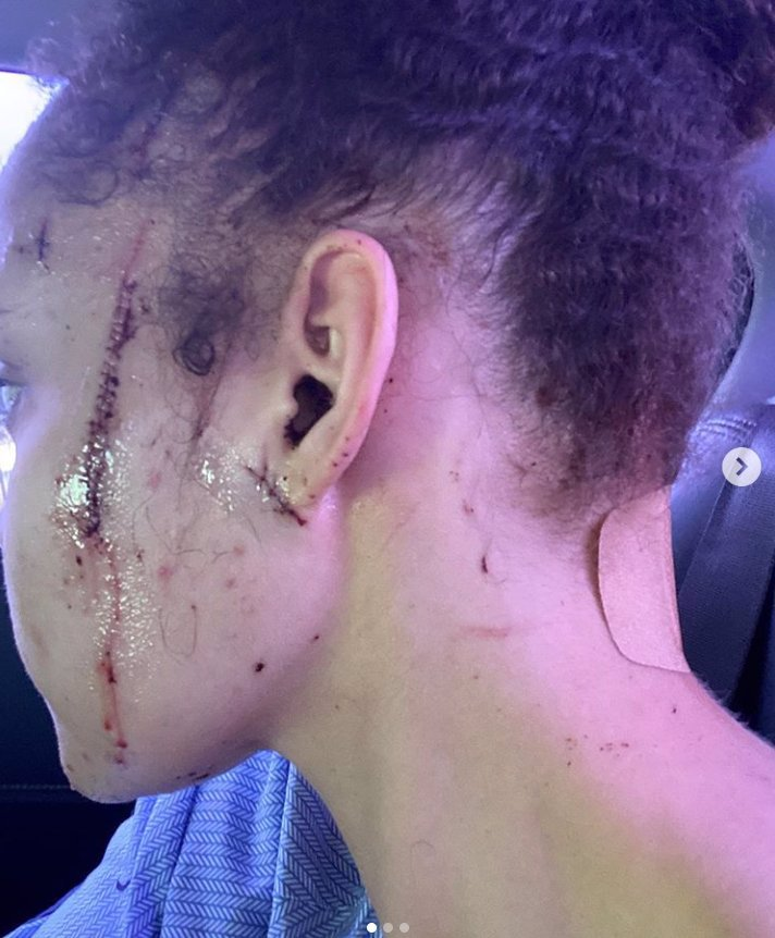 Neteř Michaela Jacksona (†50) pobodali: Yasmine (25) dostala sedm ran nožem, ukázala ošklivé rány