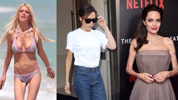 5 světových celebrit, které děsí okolí svou vychrtlou postavou