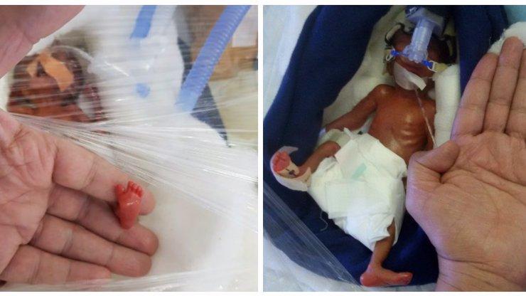 Nejmenší miminko na světě vážilo jako tabulka čokolády: Malá Manushi si vybojovala šanci na život! FOTO