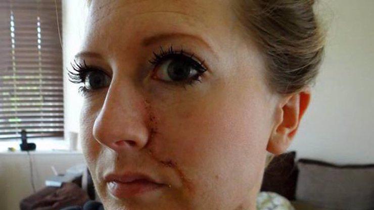 Krásná dívka toužila po zdravém opálení, místo toho si zadělala na nebezpečný nádor v obličeji