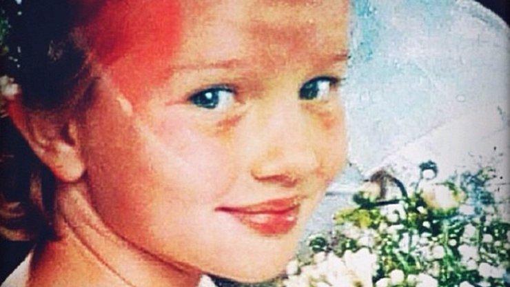 Tahle holčička v dětství zažila pekelnou šikanu kvůli křivým zubům. Víte, o koho jde?