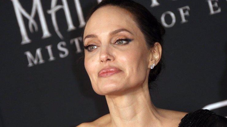 Viditelné kosti a odpor k jídlu: Anorexií prošla řada celebrit. Nemoc není radno podceňovat
