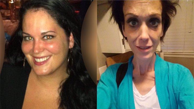Matce 4 dětí zničila operace život: Proměnila obézní ženu v smutnou anorektičku