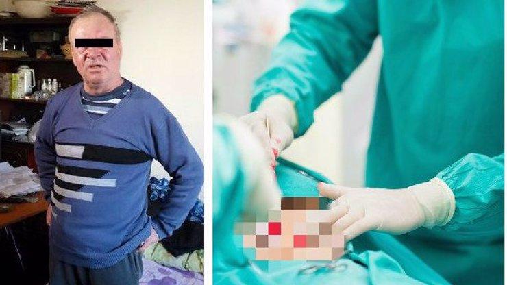 Válečný veterán šel do nemocnice na operaci ledviny. Místo toho mu amputovali penis!