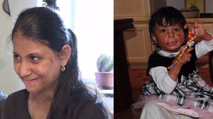 Natálka, která přežila žhářský útok: Už je z ní mladá slečna, pořád se ale bojí mluvit s lidmi